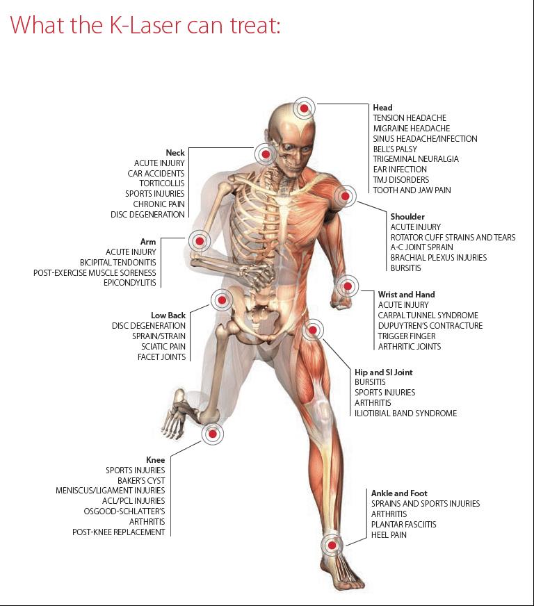 K Laser Treatment Chart in Seaford DE
